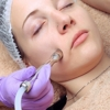 Diamond Peel Facial by Skin Health Aesthetics