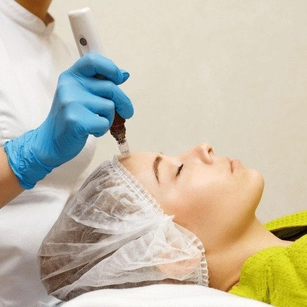 Microneedling by Skin Health Aesthetics